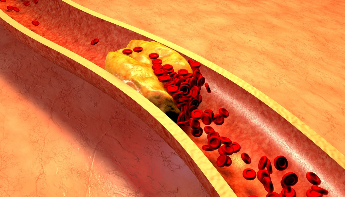 Review on the Link Between Macrophages, Mitochondria and Inflammation in Atherosclerosis Development