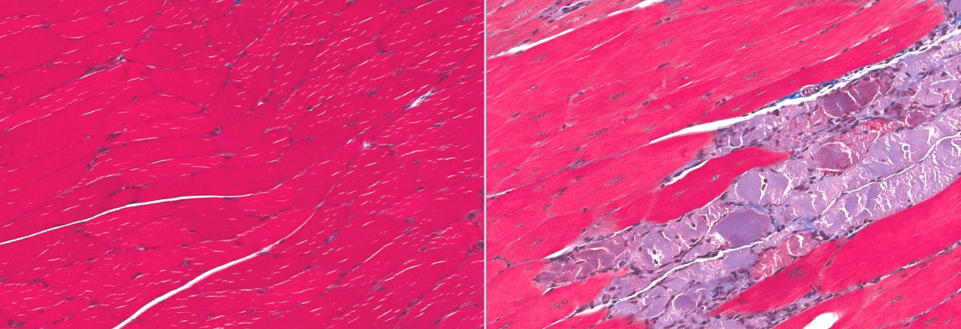 Muscle Decline in Mice Caused by Lowered Mitochondrial Factor Could Improve MD Treatment