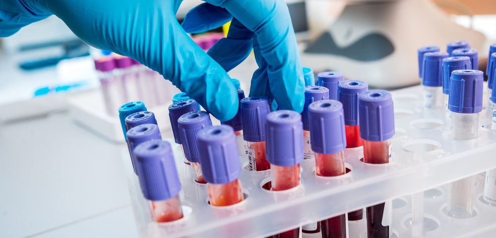 Blood Test Unveils Mutations Underlying Unknown Mitochondrial Diseases, Australian Study Finds